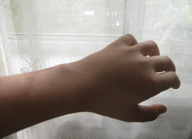 Иммобилизация при переломе костей - каким образом проиводится
