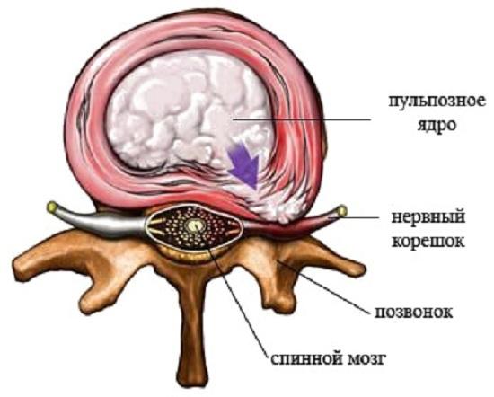 Корешковый синдром - что это такое, симптомы и лечение