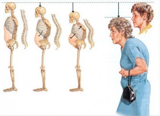Диффузный остеопороз позвоночника - что это такое
