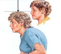 Остеомаляция - что это такое, симптомы и лечение