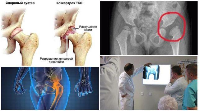 Коксартроз тазобедренного сустава 2 степени - лечение без операции