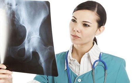 Трохантерит тазобедренного сустава - симптомы и лечение