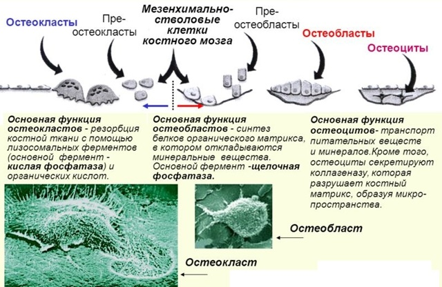 Мраморная болезнь - что это такое и как лечится?