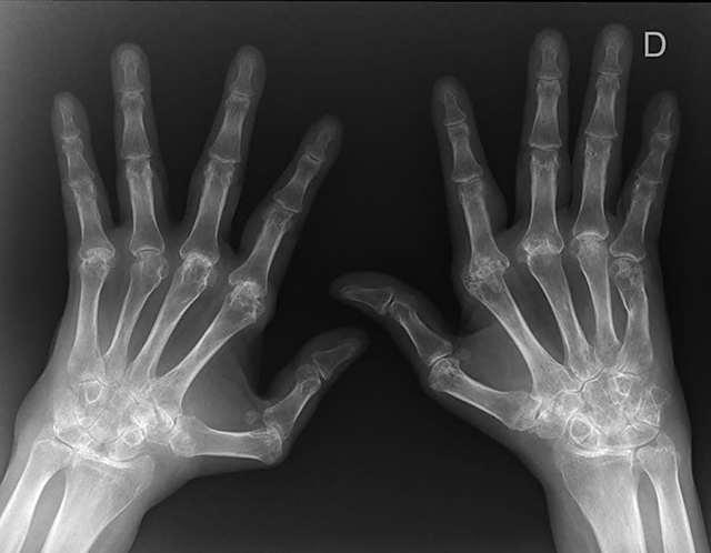 Серопозитивный ревматоидный артрит - что это такое и как лечить