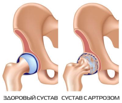 Артроз и беременность - осложнения, лечение и профилактика