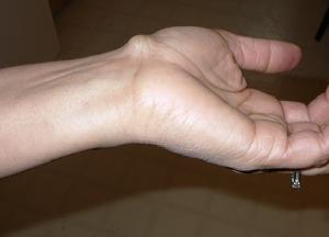 Гигрома - что это такое, как лечить и к какому врачу обращаться