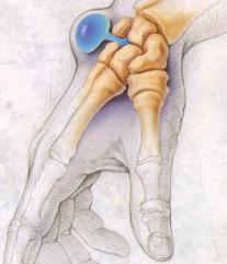 Гигрома - лечение рассасывающими мазями без операции