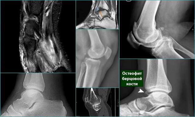 Видно ли на рентгене грыжу позвоночника - подробный ответ