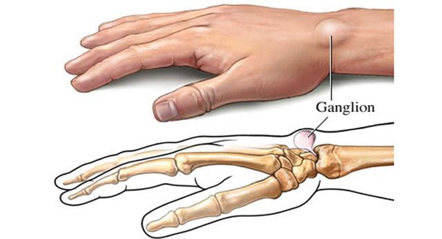 Гигрома запястья - что это такое, симптомы и лечение