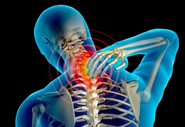 Шейный радикулит - симптомы и лечение
