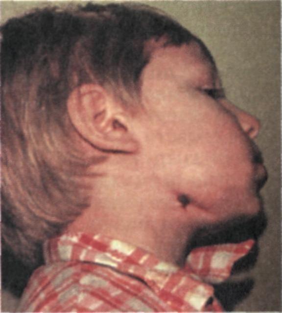 Остеонекроз челюсти - что это такое, симптомы, лечение и прогноз