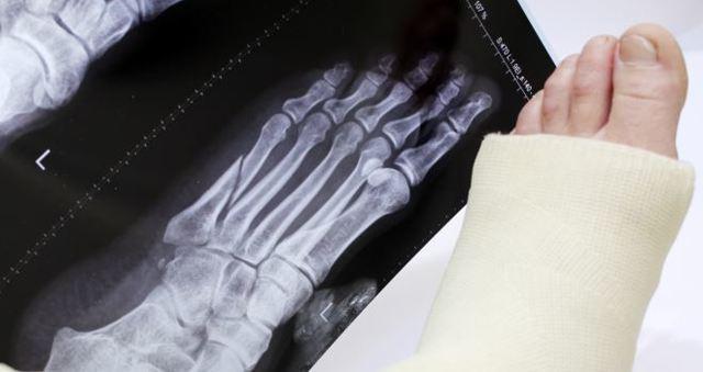 Перелом плюсневой кости стопы со смещением и без