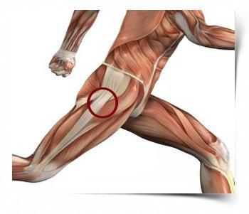Боль в тазобедренном суставе при ходьбе - причины и лечение