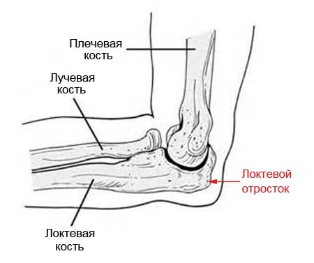 Перелом локтевой кости - лечение и срок срастания