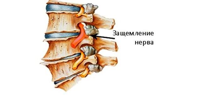 Контрактура голеностопного сустава - как определить и лечить