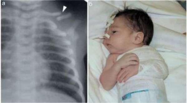 Перелом ключицы у новорожденного при родах - последствия