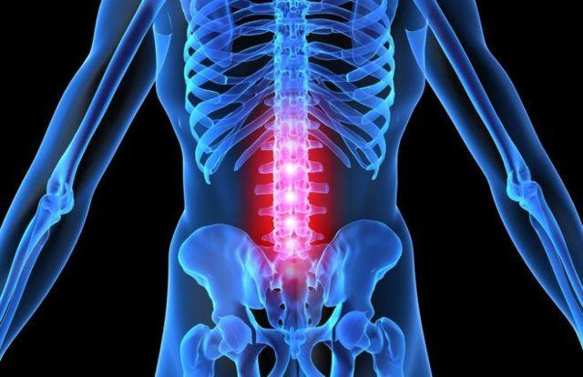 Перелом подвздошной кости - первая помощь, лечение и последствия