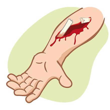 Закрытый перелом - признаки и первая помощь