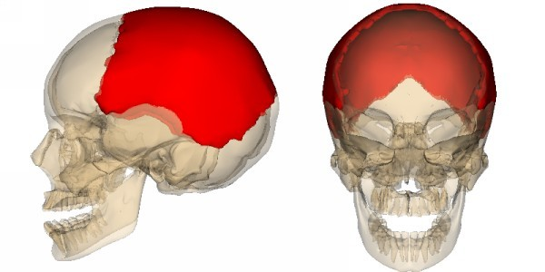Перелом теменной кости у ребенка - причины и последствия