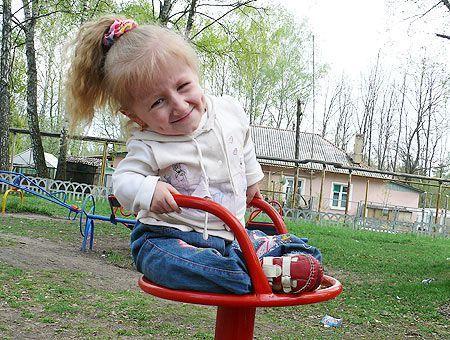 Несовершенный остеогенез у детей - что это такое?