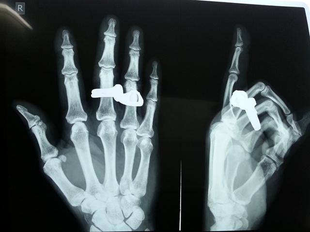 Перелом руки - симптомы, лечение и сроки срастания