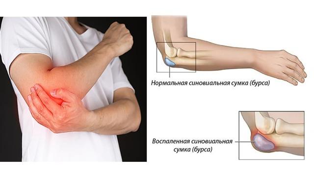 Бурсит локтевого сустава - что это такое, симптомы и лечение