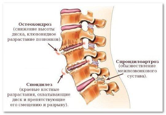Артроз позвоночника - что это такое, симптомы и лечение