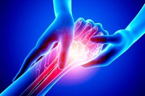 Перелом запястья руки - симптомы, лечение и последствия