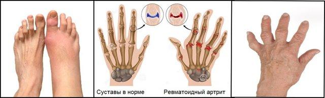Рентген - стадии ревматоидного артрита и признаки