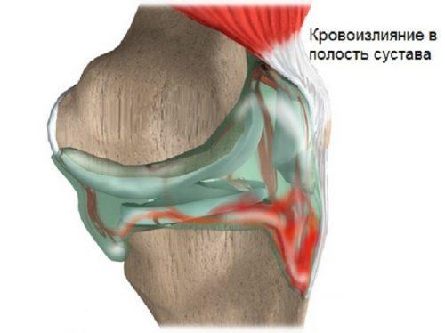 Воспаление мениска коленного сустава - симптомы и лечение