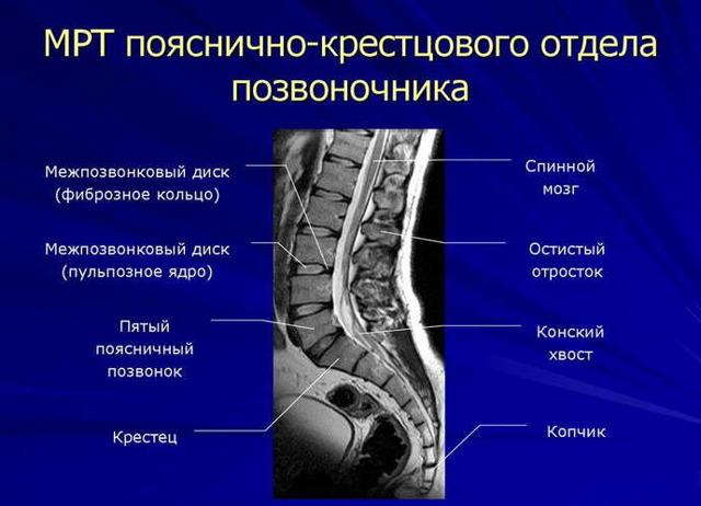 Тянущие боли в ногах при остеохондрозе - причины и лечение