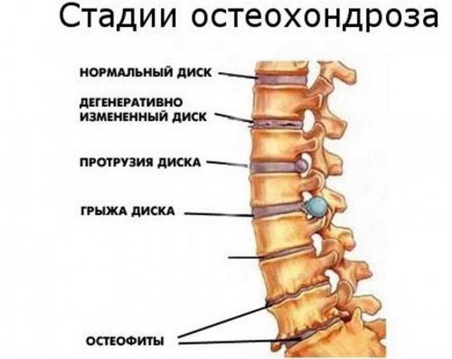 Бег при остеохондрозе - можно ли заниматься или противопоказано