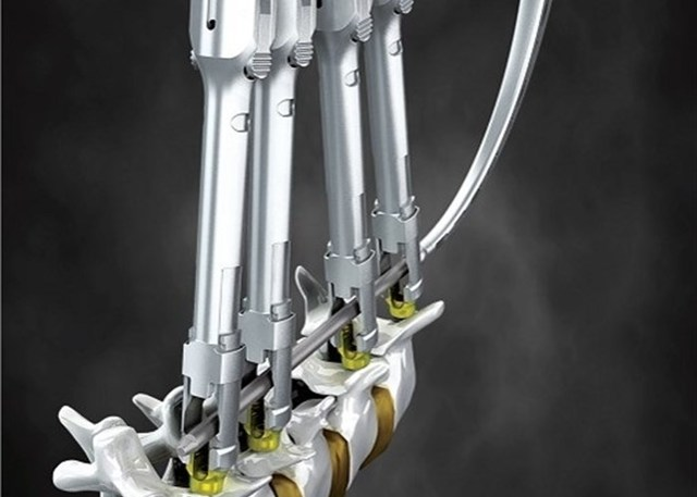 После операции на позвоночнике с металлоконструкцией какие ограничения?