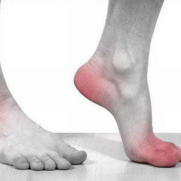 Хрустит голеностопный сустав при вращении и ходьбе - причины