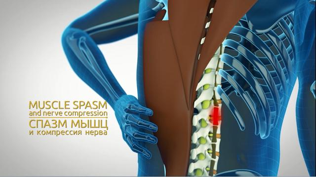 Как лечить протрузию грудного отдела позвоночника