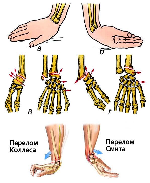 ЛФК при переломе лучевой кости - полная реабилитация