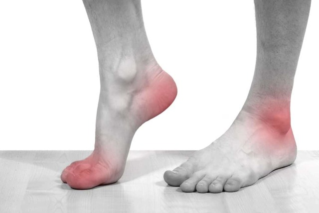 Артрит голеностопного сустава - симптомы и лечение