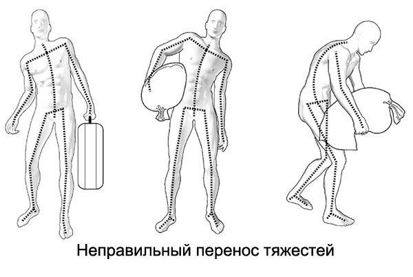 Упражнения при грыже поясничного отдела позвоночника - ЛФК