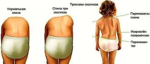 Искривление шейного отдела позвоночника - симптомы и лечение