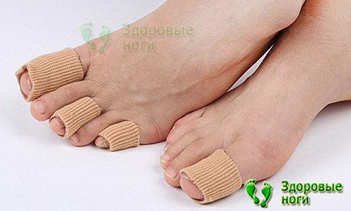 Молоткообразные пальцы на ногах - способы лечения деформации