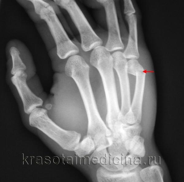Перелом пястной кости со смещением и без - лечение