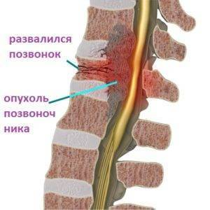 Остеобластома позвоночника - что это такое и как лечится