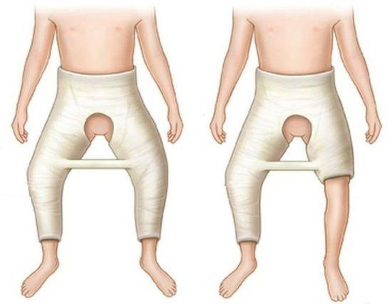 Коксит тазобедренного сустава у детей и взрослых - лечение