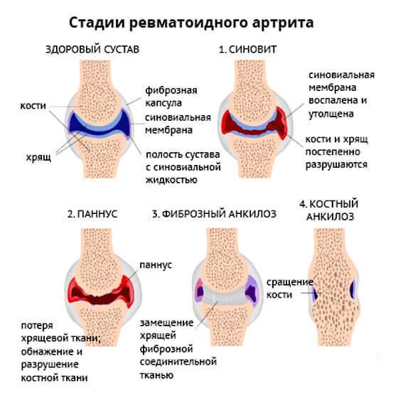 АЦЦП при ревматоидном артрите - норма показателей и расшифровка