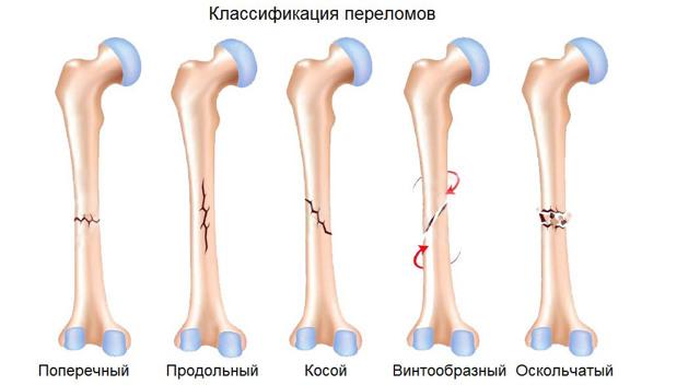 Перелом - быстрое лечение. Чем и как? Народные средства и препараты