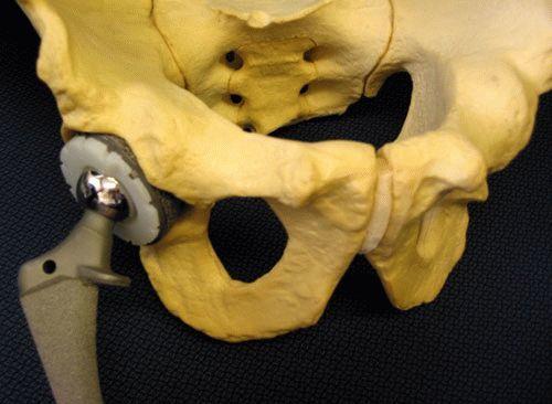 Сапожок при переломе шейки бедра - что это такое