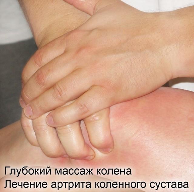 Артрит коленного сустава - симптомы и лечение, профилактика