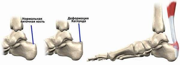 Деформация Хаглунда - симптомы и методы лечения