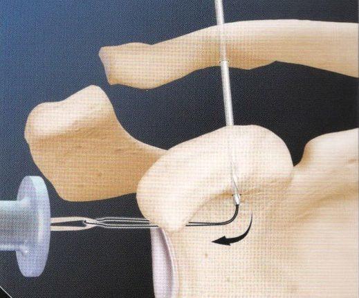 Чем опасен и как лечить артроз в акромиально-ключичном суставе
