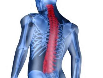 Кифоз 3 степени грудного отдела позвоночника - лечение